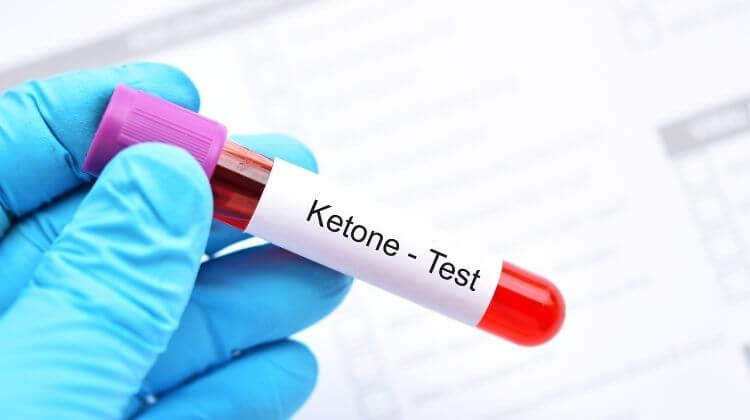 3 Best Ways to Measure The Ketosis Level